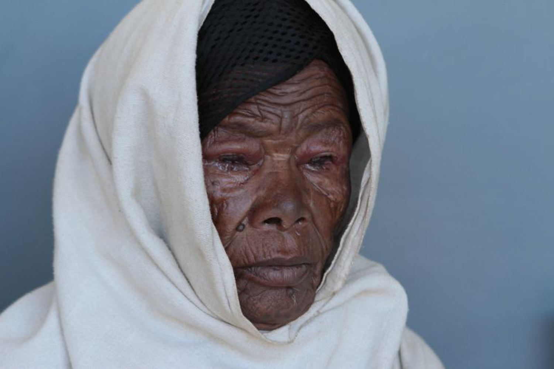 Faces Of Women With Trachoma Al Jazeera