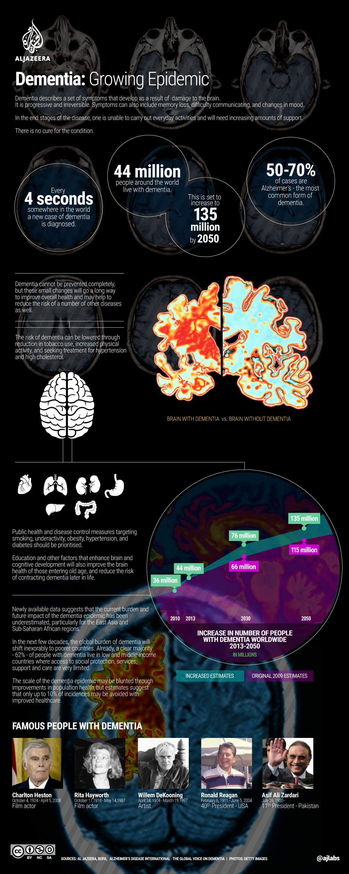 Infographic: Dementia - a growing epidemic