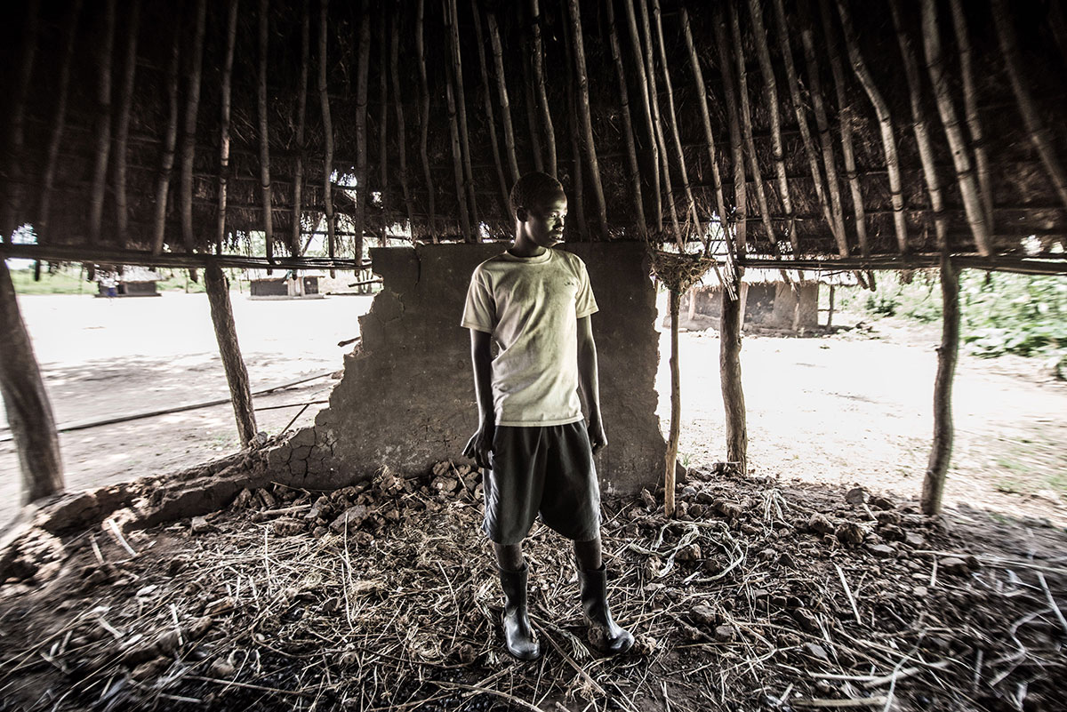 Oweka Francis, 18, inspects a nodule filled with river blindness parasites in what's left of his uncle's home. His uncle fled Lapaya village to escape the disease. [Tommy Trenchard/Al Jazeera]