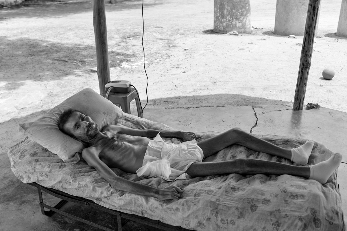 the face of hunger and malnutrition in venezuela venezuela al a man in a state of malnutrition lying on his bed in a rural area around