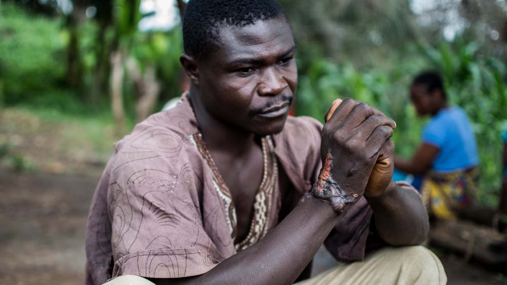 People affected by the Ebola virus are showing signs of post-traumatic stress disorder a year after epidemic defeated.