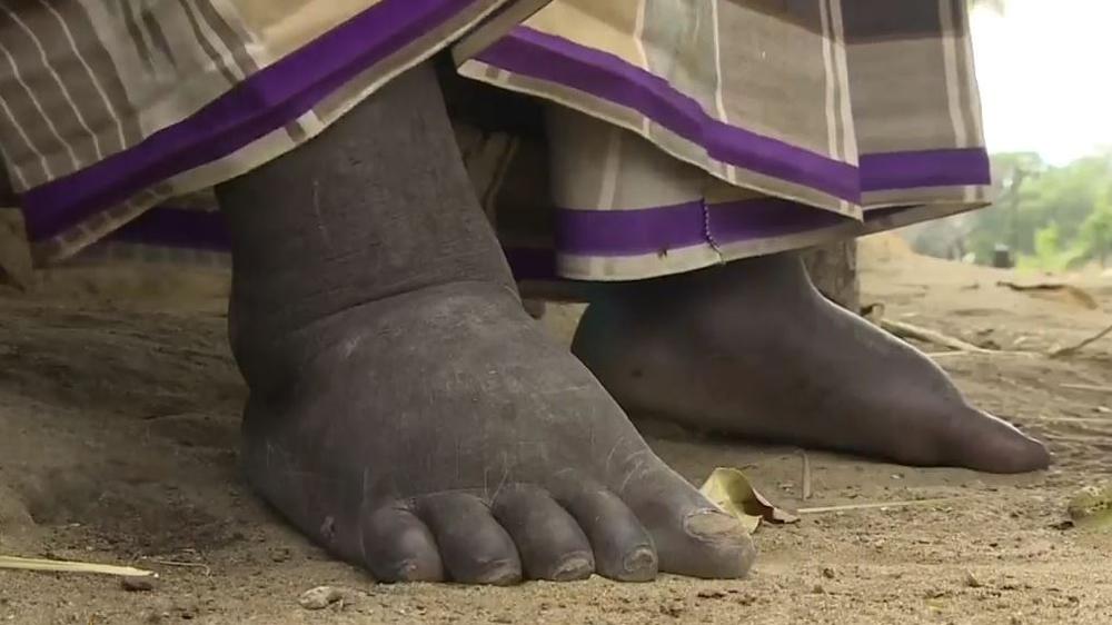 Millions Of Kenyans At Risk Of Elephantiasis Disease Kenya News