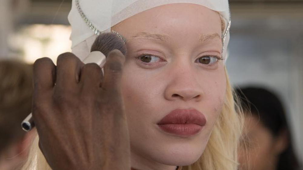 On International Albinism Awareness Day, meet people with albinism who are breaking barriers.