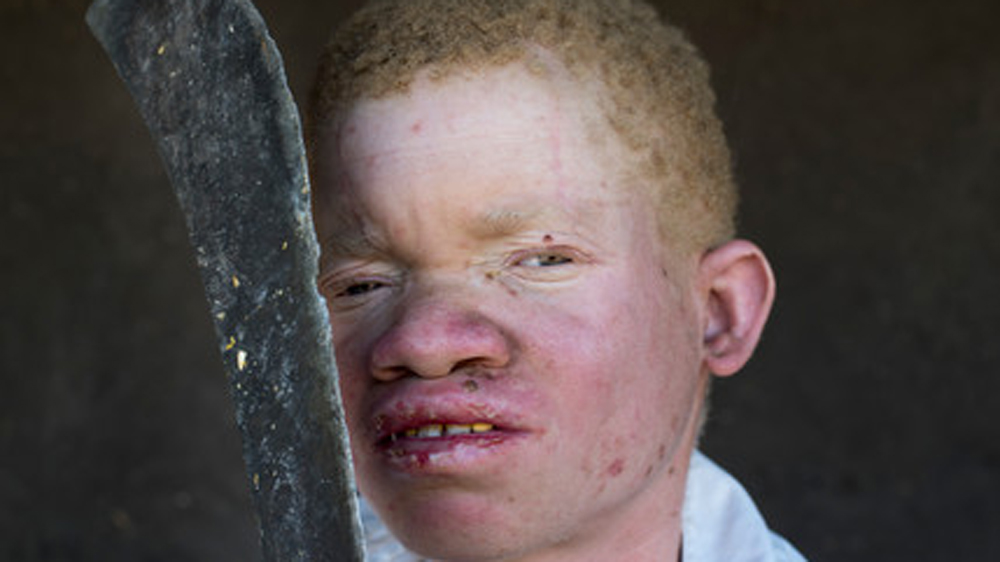 "Rights body raises alarm over attacks against people with albinism, but government dubs Amnesty report as ""unfair""."