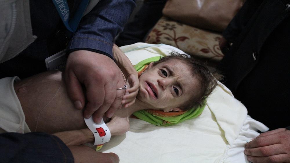 UN urges immediate evacuation of 137 Syrian children