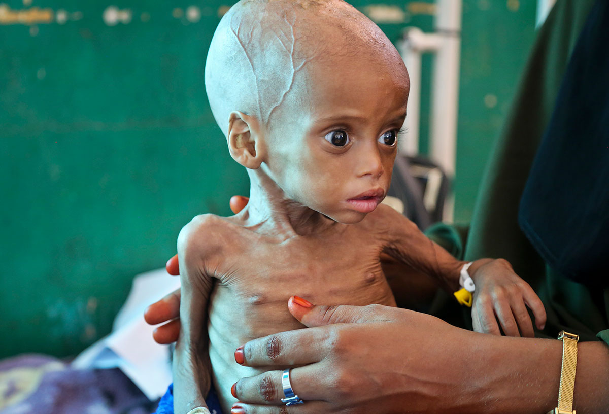 Sacdiyo Mohamed, an acutely malnourished nine-month-old child, is treated at the Banadir Hospital in Somalia's capital, Mogadishu. The government has declared a national disaster after a prolonged drought, and the United Nations estimates that five million people in the Horn of Africa nation need aid, amid warnings of a full-blown famine. [Mohamed Sheikh Nor/AP Photo]