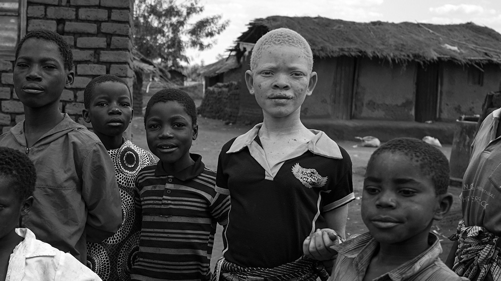 In Malawi, people with albinism are being killed for their bones. Al Jazeera investigates what is driving these murders.