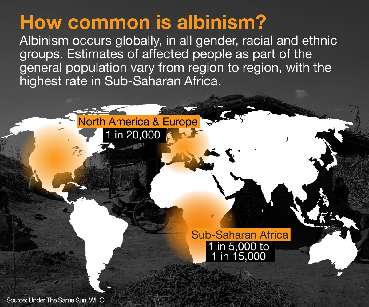 a research on albinism and its effects on people Media analysis of albino killings in murders of people with albinism are a recently emerging human rights issue in further research to this effect is recommended.