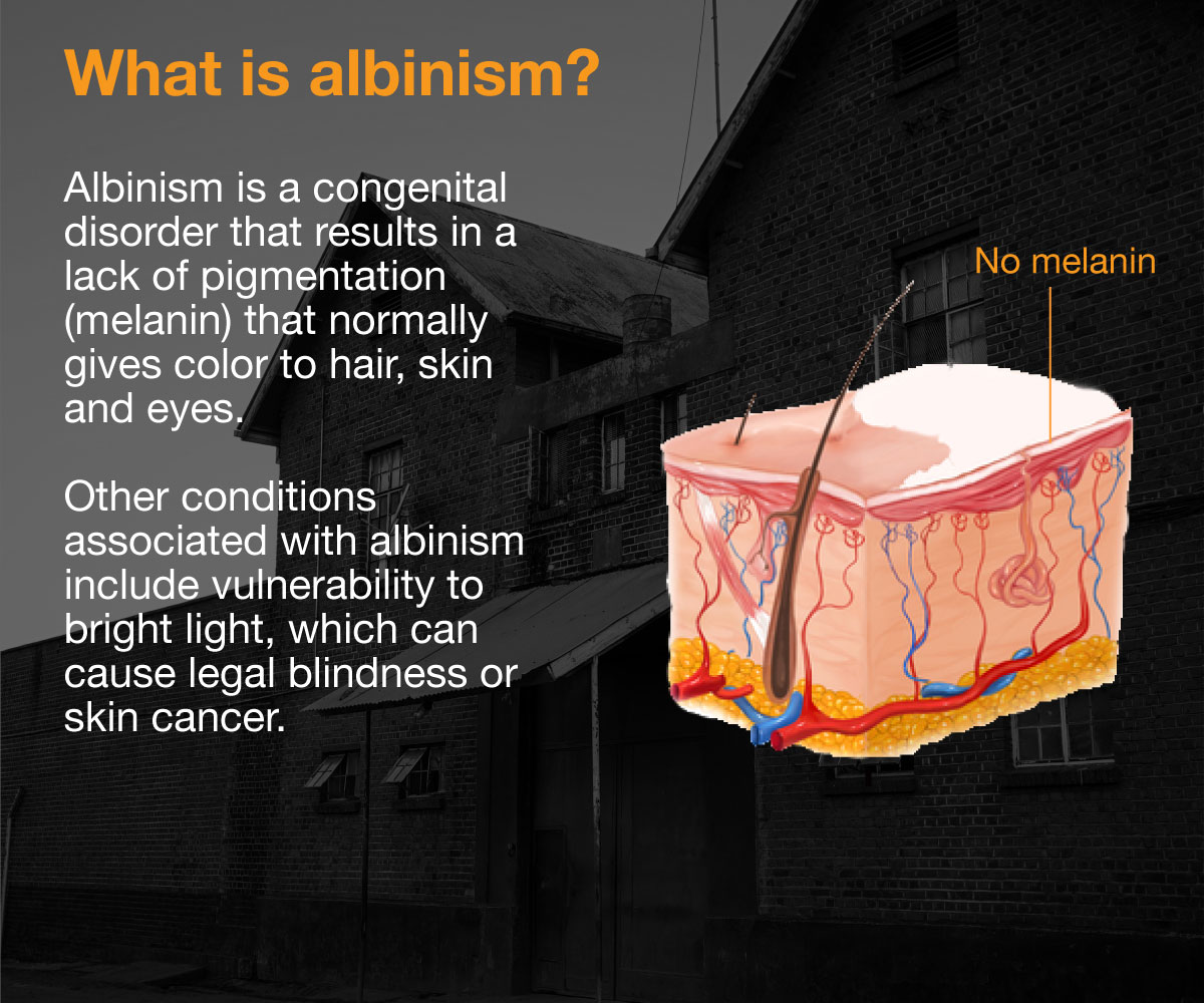 what is albinism and what causes it