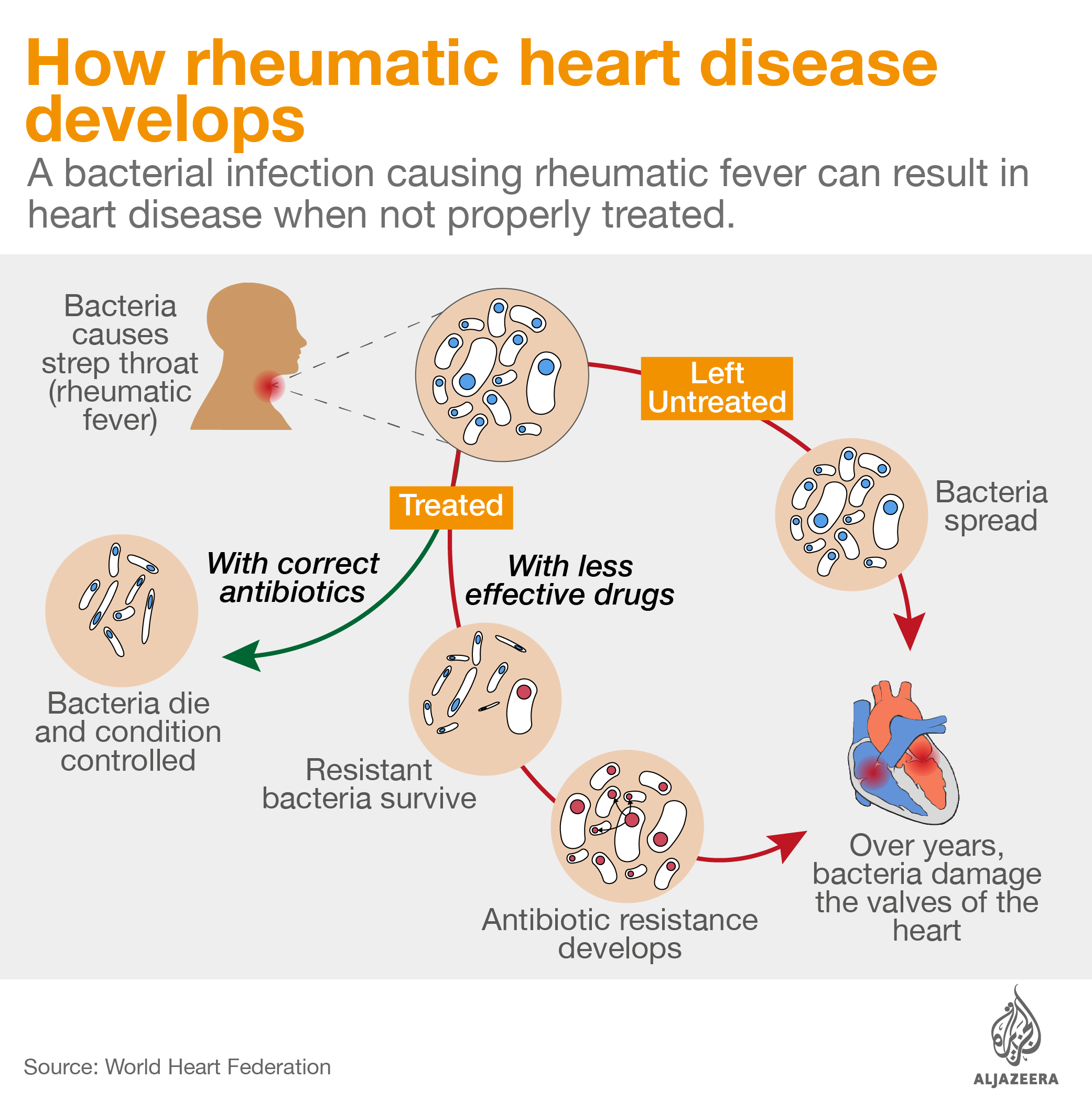 how rheumatic heart disease develops