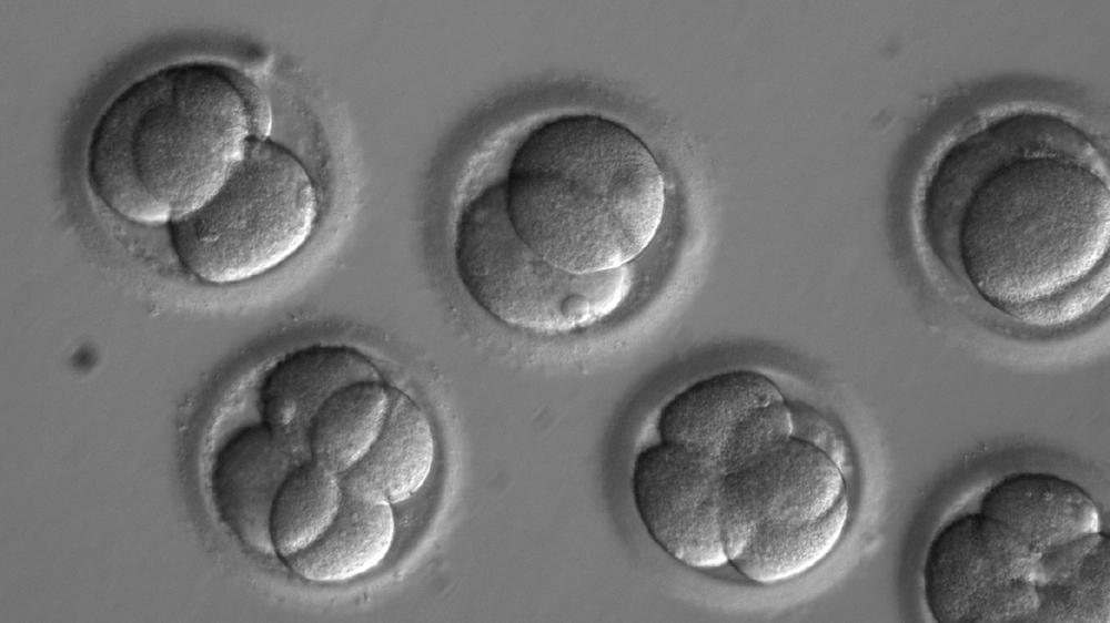 First safe repair of disease-causing human embryo gene | USA News