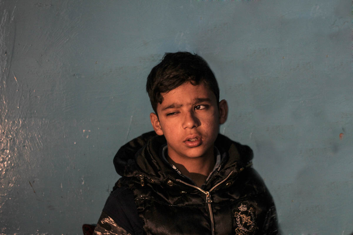 Asif Rasid, a class 6 student, lost one of his eyes in a pellet attack. 'I went to a nearby shop when stone pelting was on. I got stuck in the tear gas smoke and my eyes were hit by pellets,' he said. 'My life has completely changed. I am unable to study or even see anything on the black board. Even after two years, I feel pain as pellets remain in my body.' [Sameer Mushtaq/Al Jazeera]
