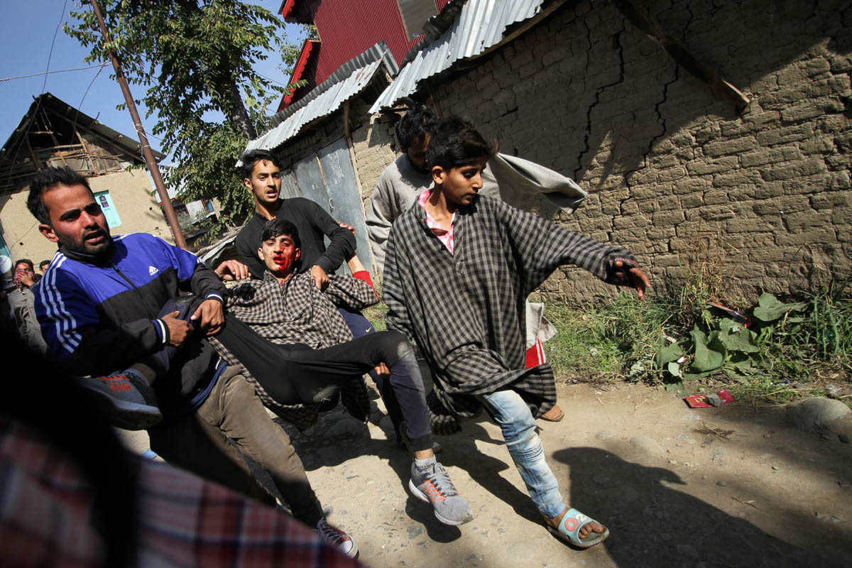 A wounded boy being taken to hospital after a live shell lying in the rubble of an encounter site went off in Kulgam district last week. Seven civilians died and 30 were injured as they were dousing the flames of a house where the gun battle took place, in which three rebels were also killed. [Sameer Mushtaq/Al Jazeera]