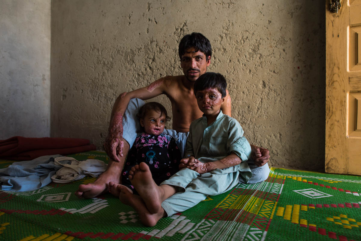 Afghanistan has been conflict-ridden since the US-led 2001 invasion. Once on the brink of defeat, the Taliban has been steadily advancing since 2014. The conflict, paired with chronic drought, has led to widespread displacement and food insecurity. [Andrew Quilty/IRC]