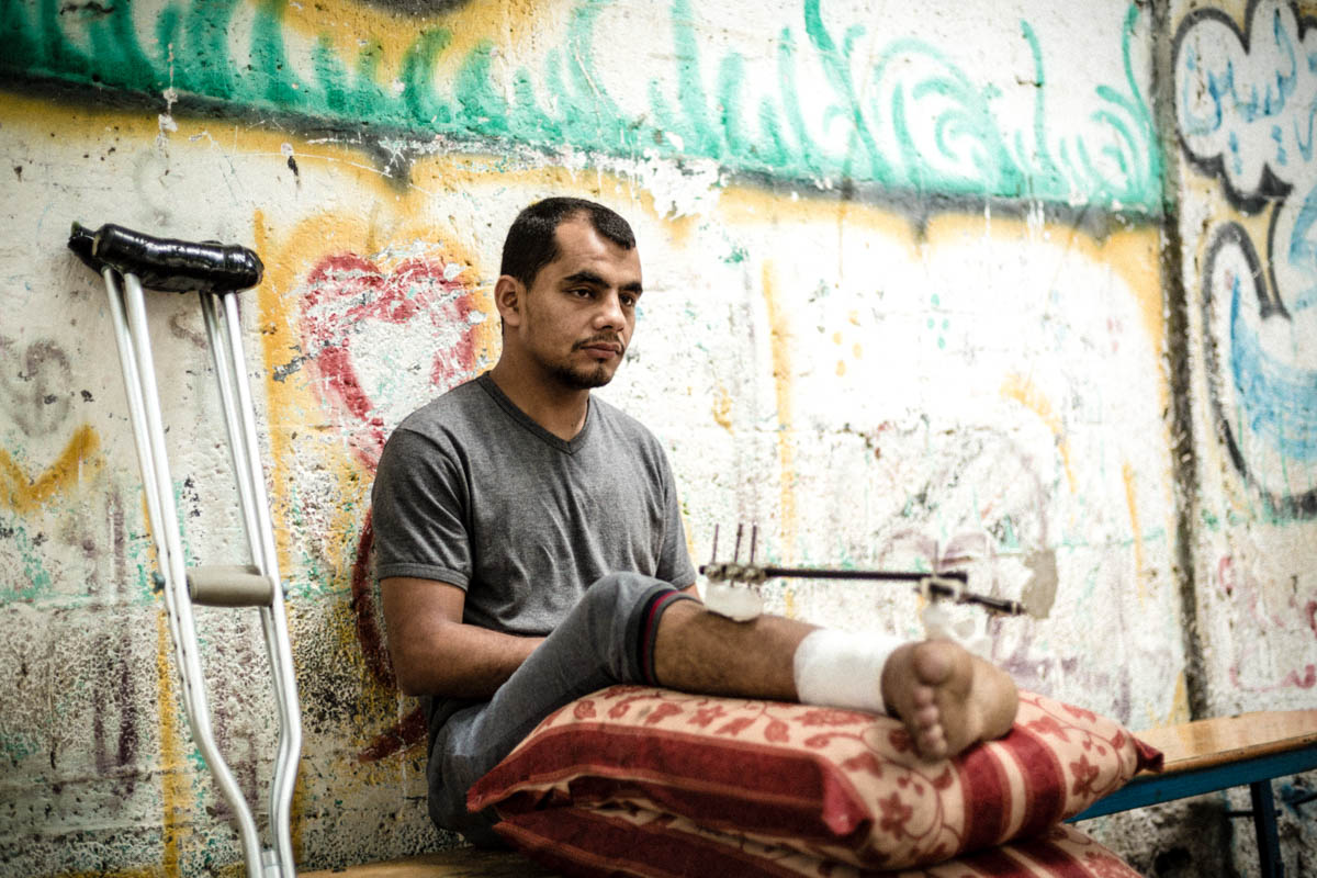 Baha had been working in his brother's mechanic shop until he was injured in recent violence. He still needs follow-up treatment and may face additional surgeries in the next six months. [Alyona Synenko/ICRC]