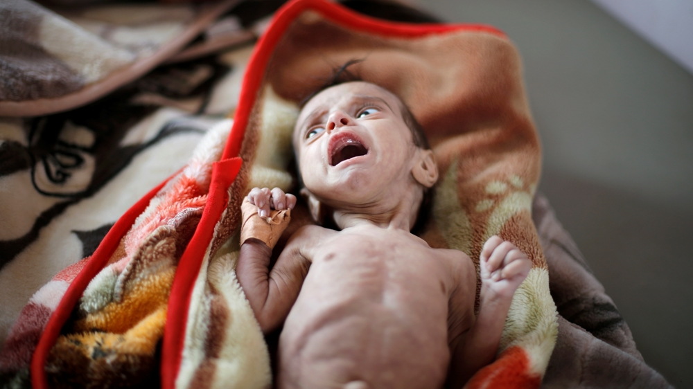 Yemen is undeniably the world's worst humanitarian crisis: WFP