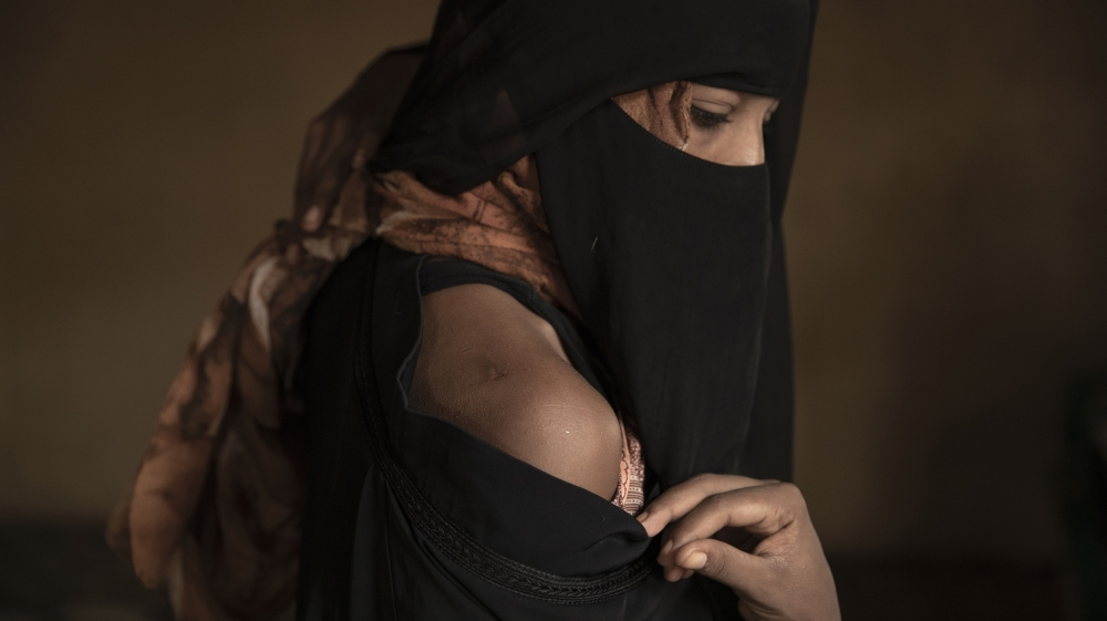 In this July 21, 2019 photo, Ethiopian migrant Eman Idrees shows her shoulder with a wound from torture after being held and abused for eight months in a desert compound known in Arabic as a