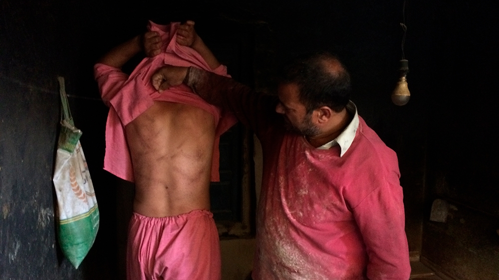In this Monday, Aug. 26, 2019, photo, a Kashmiri baker Sonaullah Sofi lifts the shirt from his son's back to show torture marks allegedly caused by Indian army soldiers at their bakery in southern vil