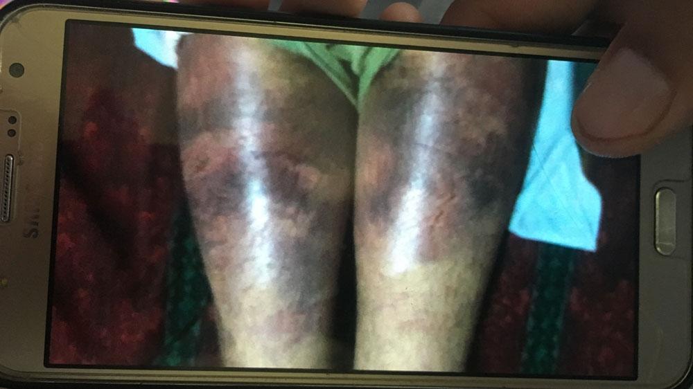 Kashmir torture
