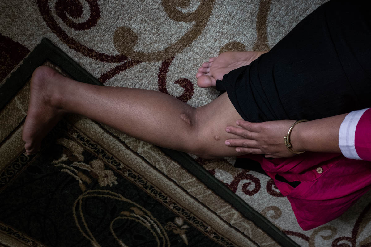 Tina*, a sex trafficking survivor who asked that her identity not be disclosed, shows scars from injuries she suffered during the systematic rape, abuse and enslavement she suffered in Kuwait, where she thought she was going to work as a domestic maid for a family. Instead, she said the family kept her captive to be raped by its men and their guests at parties. [Violeta Santos Moura/Al Jazeera]