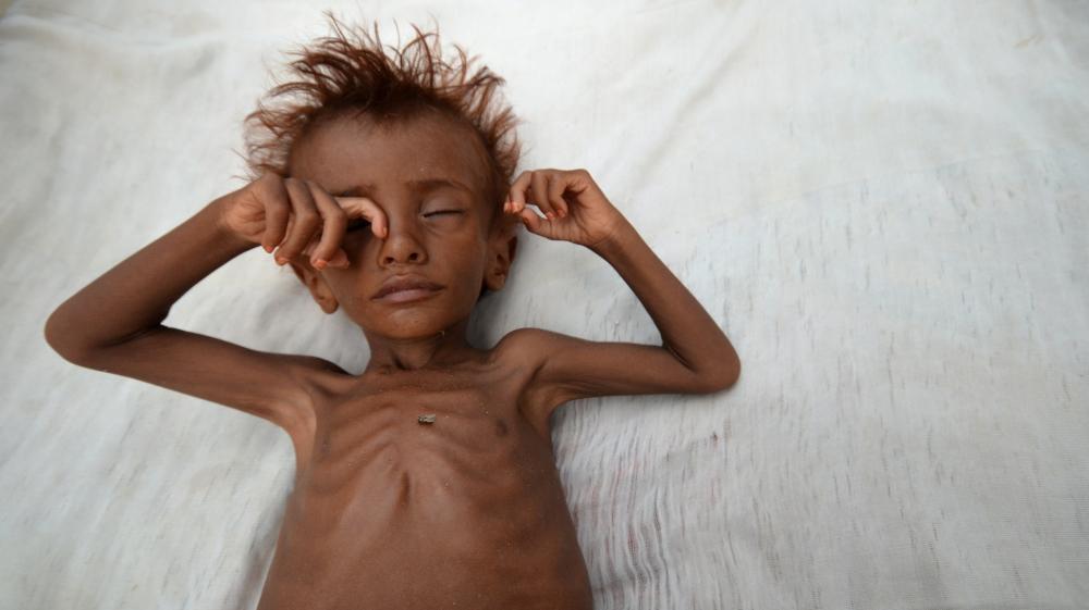 UN warns 10 million face acute meals shortages in Yemen thumbnail