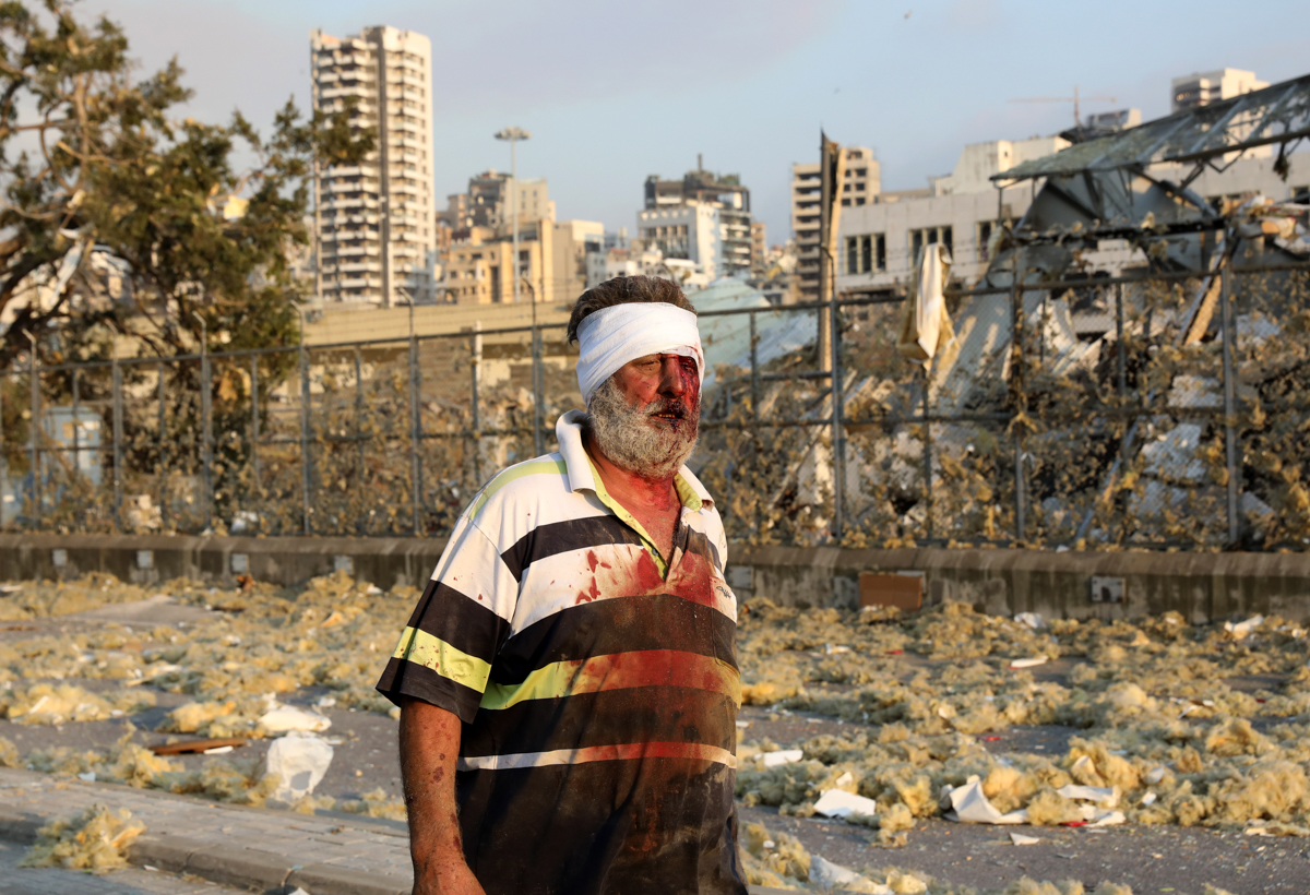 A wounded man walks near the scene of an explosion in Beirut on August 4, 2020. - A large explosion rocked the Lebanese capital Beirut on August 4, an AFP correspondent said. The blast, which rattled