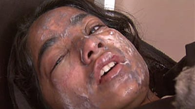 Video: Afghan girls scarred by acid