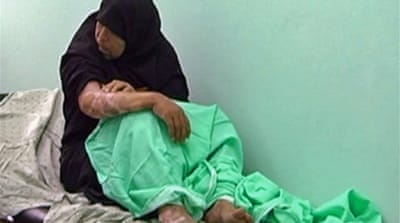 Video: Gaza phosphorus victim talks