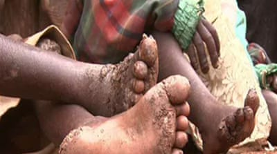 Video: Kenyans plagued by jiggers
