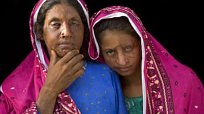 Helping acid attack victims