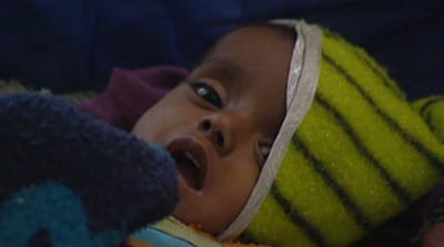 Child malnutrition rampant in India