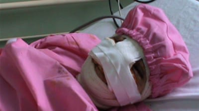 Setara's husband cut off her nose and lips in a drug-induced rage [Al Jazeera]