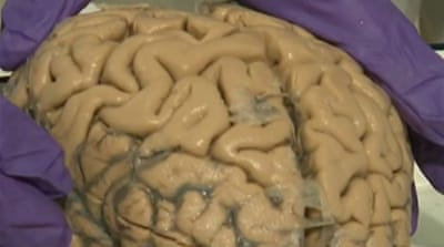 Autism researchers call for brain donations