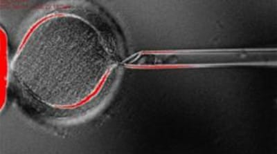Back to the future: Cloning human stem cells