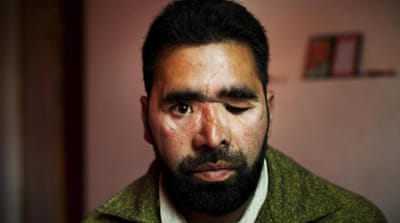 In Pictures: Kashmir's other conflict