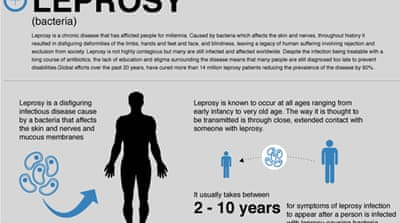 Life cycle: Leprosy