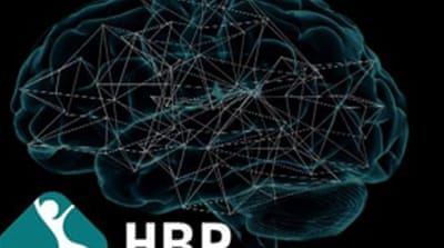 HBR project's head says protesting scientists do not understand the venture enough [Human Brain Project]