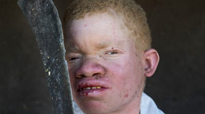 Body parts belonging to people with albinism have become sought after in parts of southern and eastern Africa [Amnesty International]-