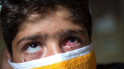Pellet guns cause severe eye injuries in Kashmir