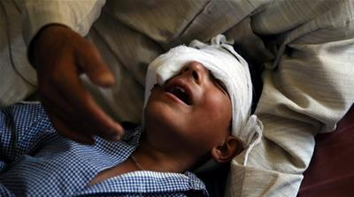 Pellets and rubber bullets are not 'humane'