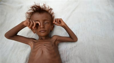 Will seven million starving Yemenis ever find justice?