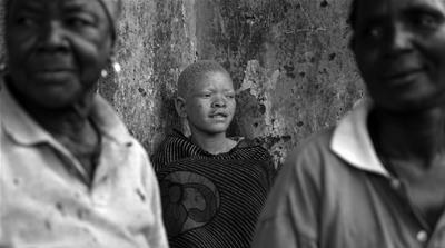 A 'resurgence' in attacks on people with albinism