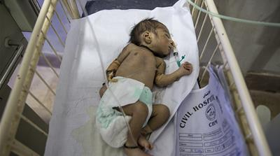 UNICEF: One million children die the day they are born