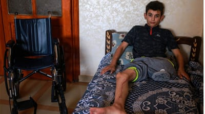 Palestinian teen shot by Israeli soldier: 'My leg is gone'