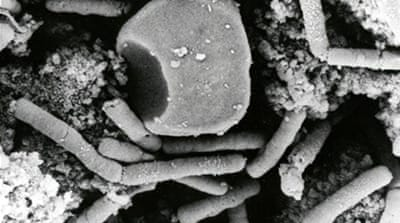 Anthrax is a deadly infectious disease caused by exposure to the bacterium Bacillus anthracis  [File: EPA]