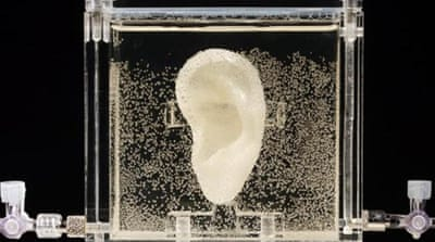 The ear was 3D-printed and technically alive, says the artist [AP]