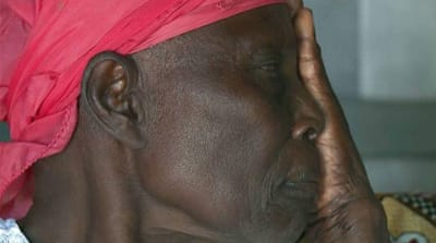 Half a million Kenyans are partially or fully blind