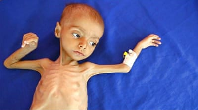 19 million Yemeni children suffer malnutrition and illness