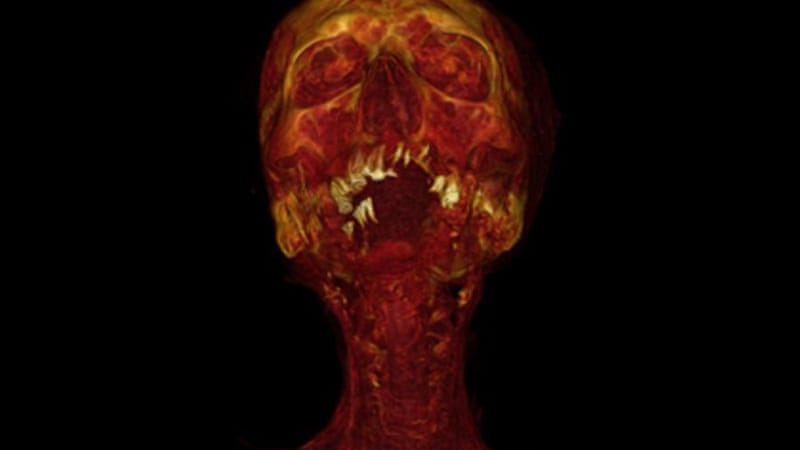 The CT scans of 137 mummies showed evidence of hardened arteries in one third of those examined [AFP]