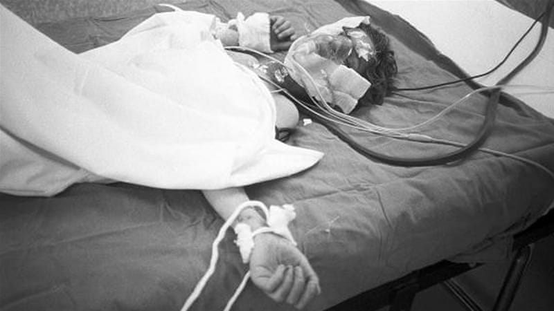 A young boy victim of Saddam Hussein's chemical gas attack on Halabja, lies in a Tehran hospital bed, March 1988. [Getty]